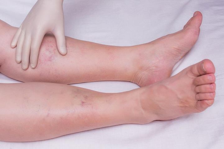 száraz vörös foltok jelentek meg a lábakon