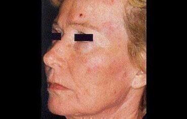 vörös foltok az arcon súlyos viszketés)