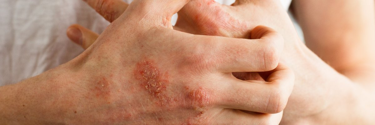 hogyan lehet gyógyítani a pikkelysömör dióval fejbőr pikkelysömör krémek