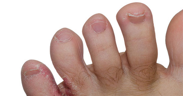 aloe pikkelysömör kezelés vélemények pikkelysömör erythroderma kezelse