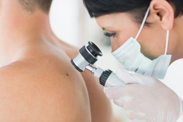 kezelés japán pikkelysömörben krém pikkelysömörhöz svájcban