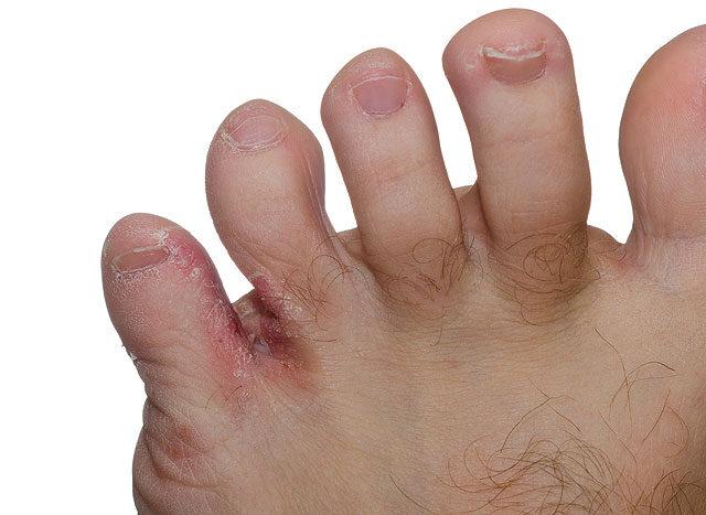 száraz bőr és vörös foltok vörös foltok a kezeken láb fülén