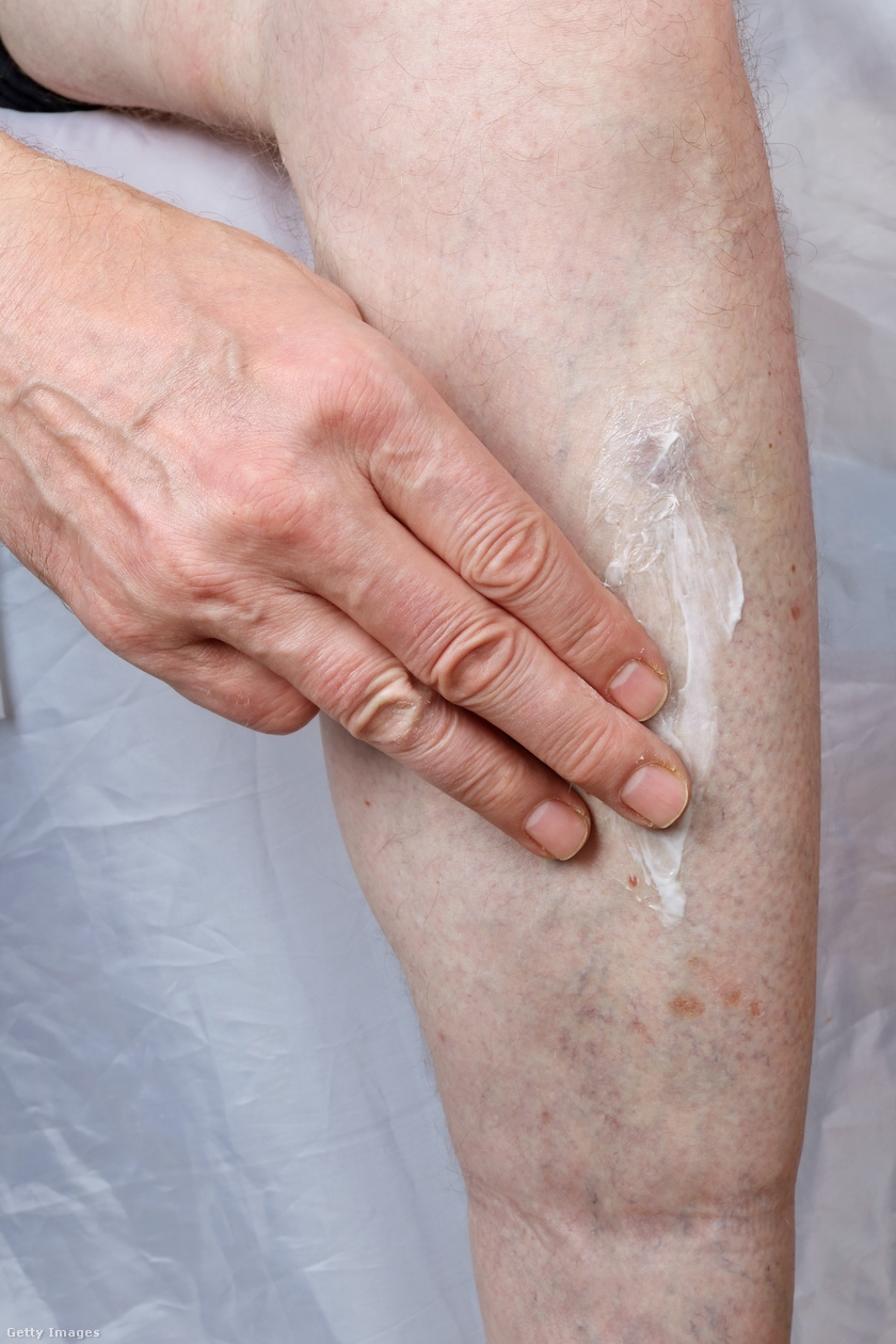 krém a vörös foltok a lábakon a pikkelysömör gyógyszereinek mellékhatásai