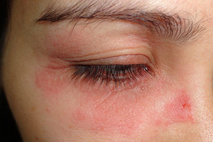 vörös folt a szemhéj bőrén