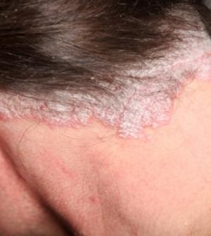 csillag pszoriázis kezelése fagy után az arcot vörös foltok borították