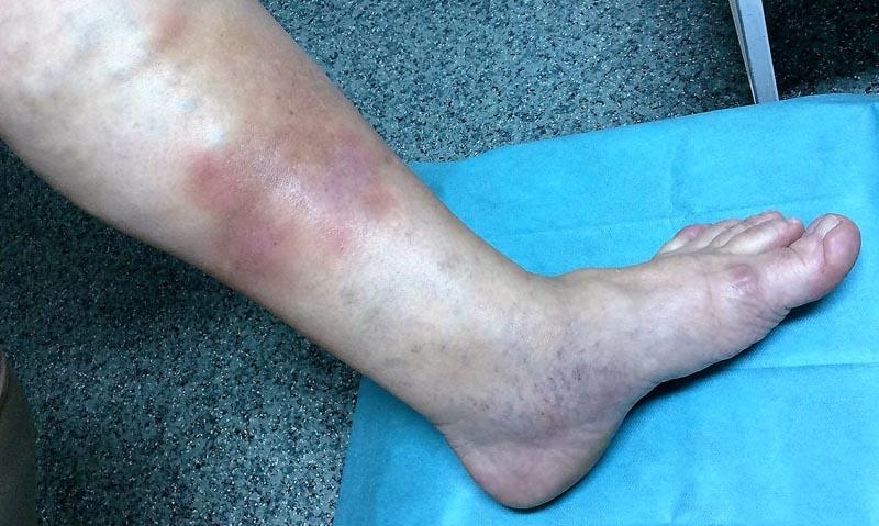 hogyan kell kezelni a láb vörös foltjait