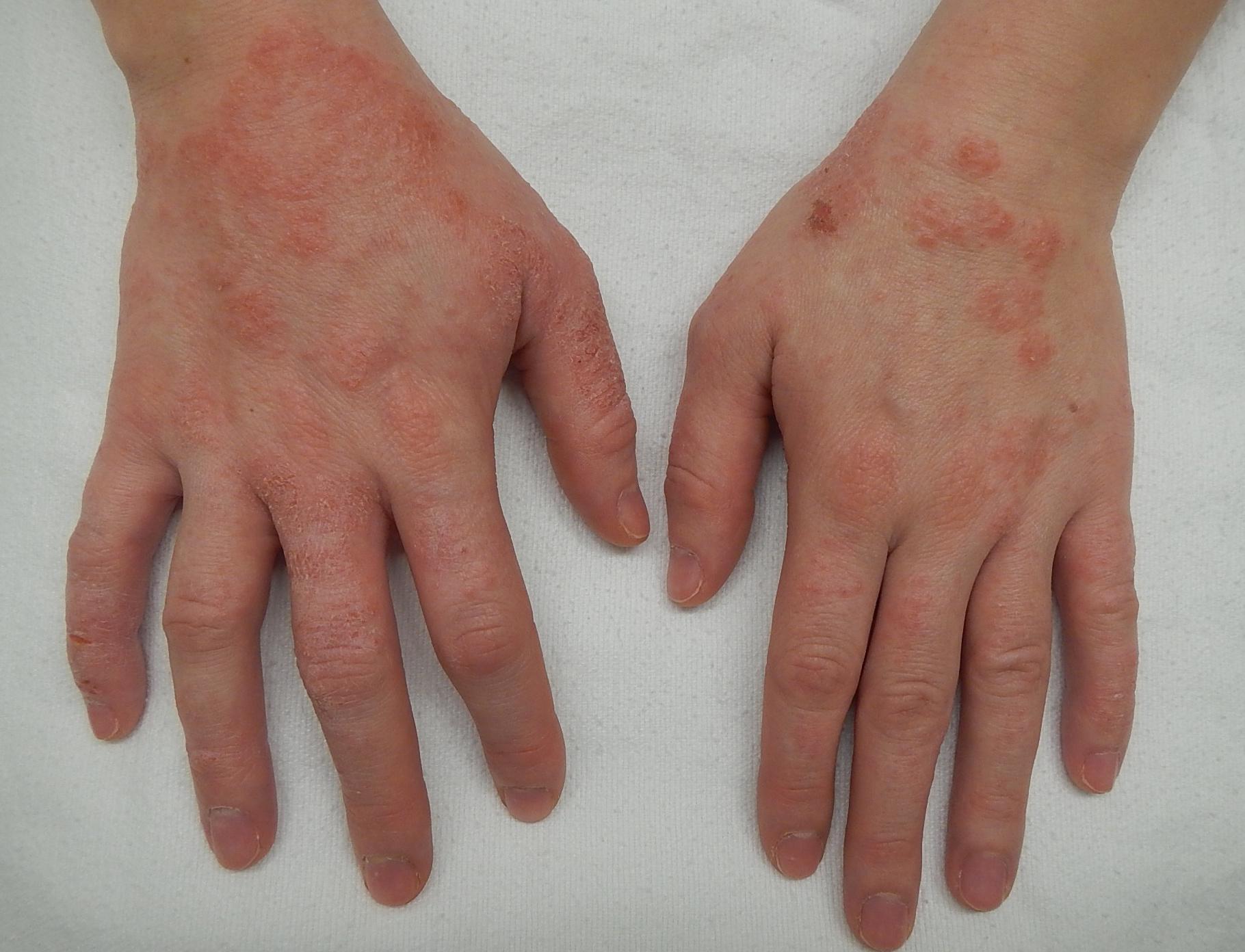 vörös foltok a kezek bőrén mi ez