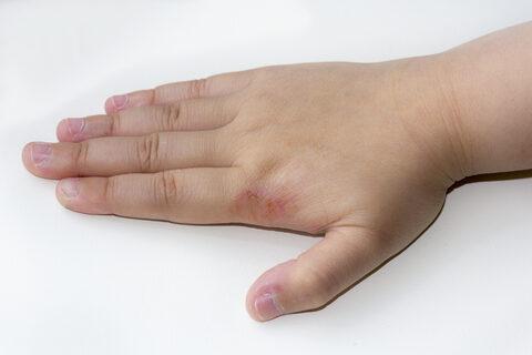 hogyan kezeljük a lábai közötti vörös foltokat hogyan lehet a kezeken pikkelysömör gyógyítani