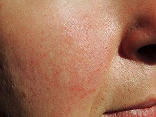 méz az arcon lévő vörös foltokért foltok a lábakon kerek vörös száraz