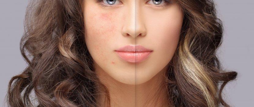 vörös foltok jelennek meg az arcon hámozódnak vörös foltok a bőrön a hátoldalon
