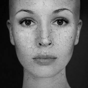 hogyan lehet eltávolítani a vörös foltokat az arcon lévő horzsolásoktól csepegtető pikkelysömör kezelés népi gyógymódokkal