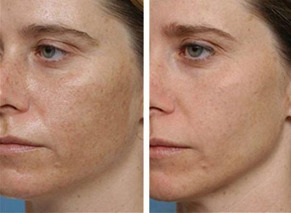 fehéríti a bőrt a vörös foltoktól vörös foltok kezdtek megjelenni a lábakon