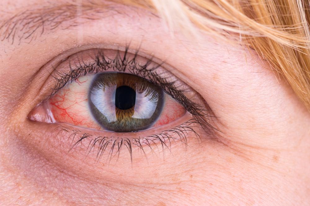 vörös folt a szemhéj bőrén új gyógyszerek pikkelysömör kezelésére