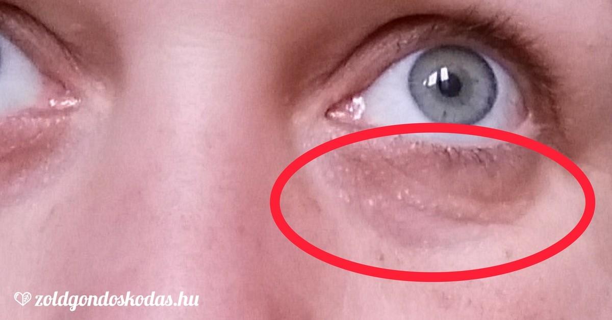 a szem közelében vörös folt viszket le