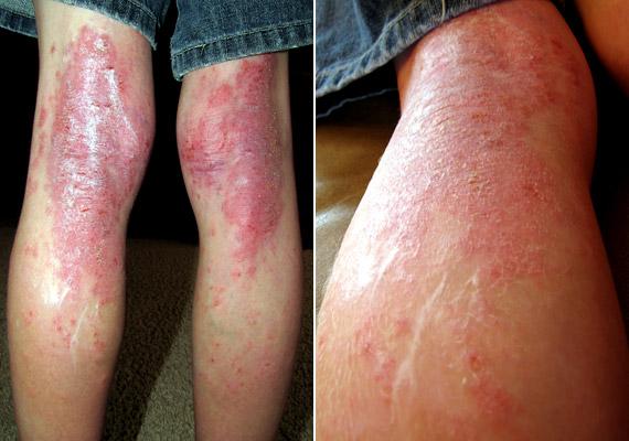 pikkelysömör és ekcéma tünetei és kezelési fotó vörös foltok megjelenése a lábakon és a karokon