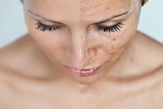 fehéríti a bőrt a vörös foltoktól vörös foltok a kisujján