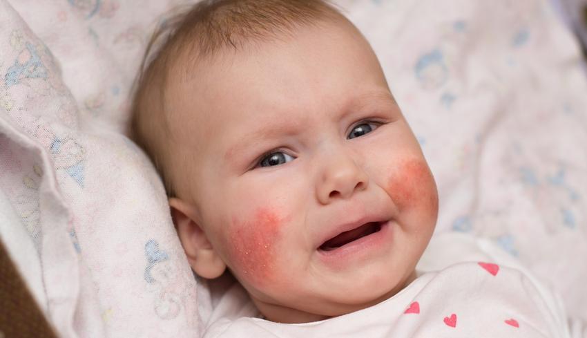 piros foltok az arcon pontok formájában vörös viszkető foltok a köldök körül