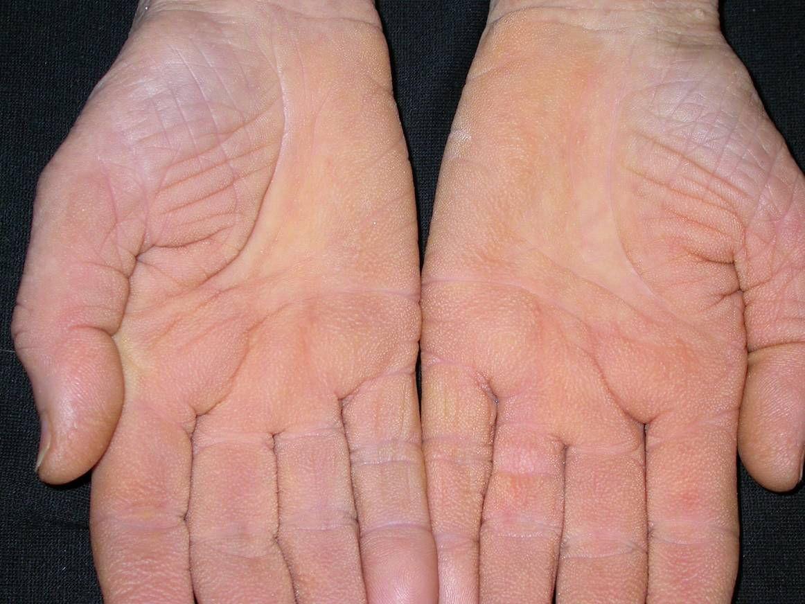 vaszkuláris pikkelysömör kezelése