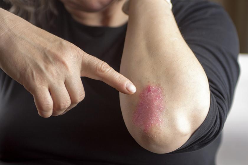 hogyan kell helyesen kezelni a pikkelysmr fejn vörös foltok a hasán és az oldalán
