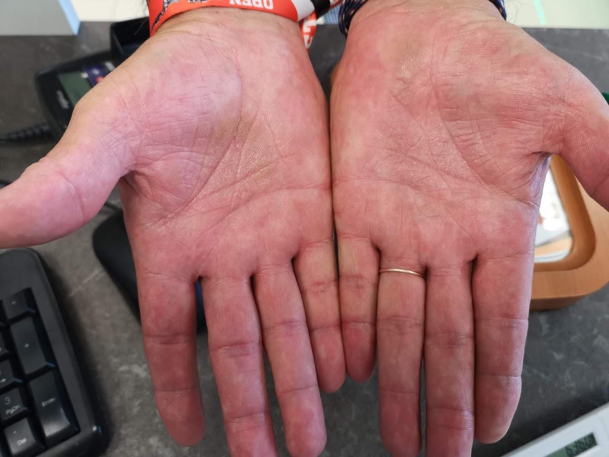 vörös folt a kezén hámlik mi ez