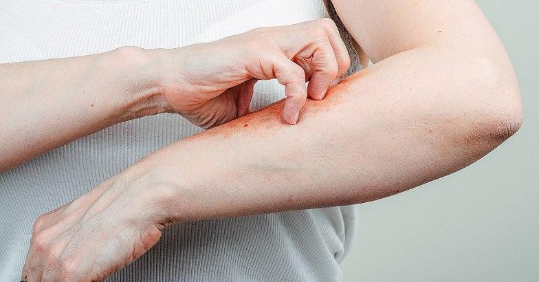 pikkelysömör kezelése együtt vörös foltok, amelyek érdesek a karokon és a lábakon