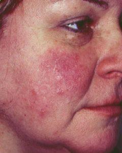 gyógynövényes kezelések pikkelysömörhöz folyékony nitrogén pikkelysömör kezelése