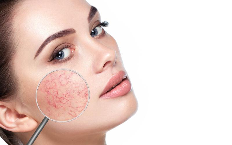 gyógymód az arcon lévő vörös foltok ellen