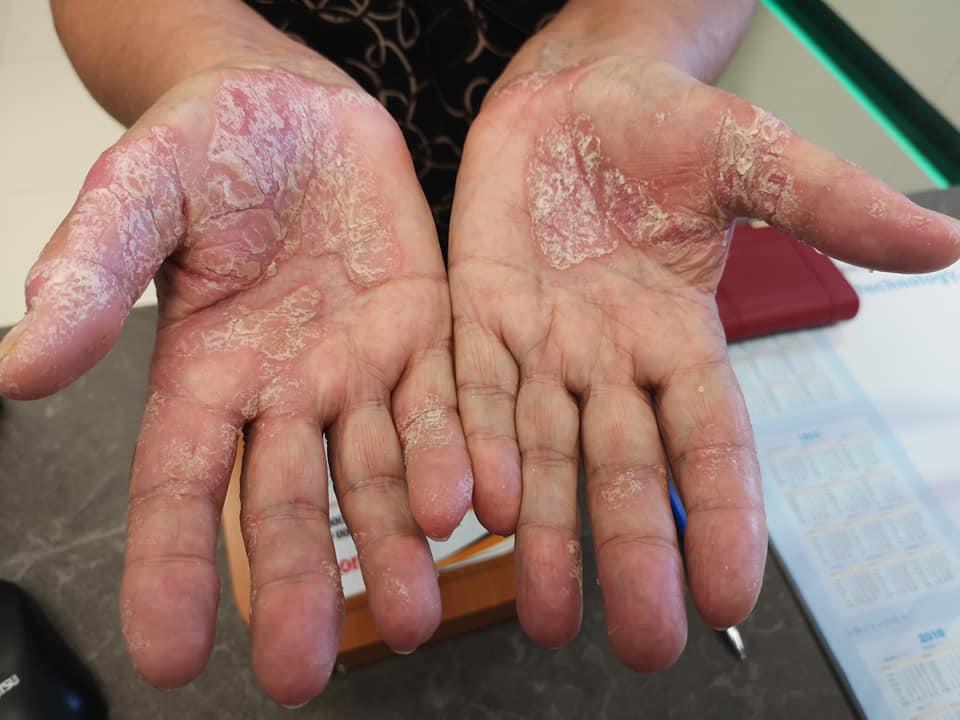 vörös folt van a kezén és hámlik vörös foltok pontok formájában a bőrön
