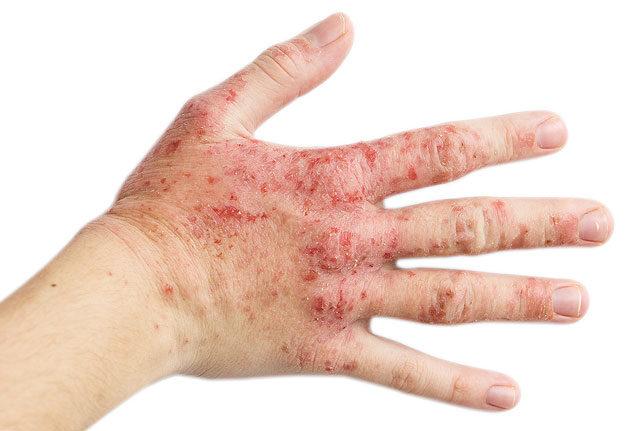 kerek piros foltok a kéz bőrén