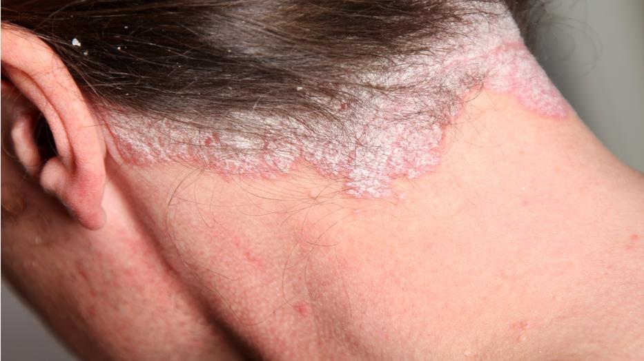 hogyan lehet pikkelysömör gyógyítani 3 hét alatt pikkelysömör kezelése kostroma