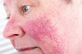 vörös foltok az arcon rosacea