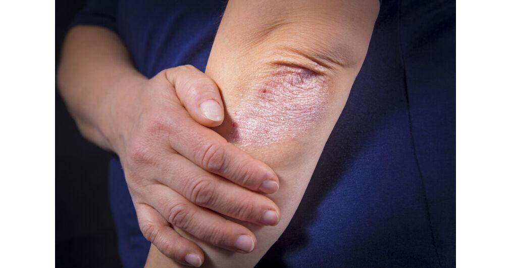 gyógyító kezeli a pikkelysömör piros foltok a pikkelysömör kezein