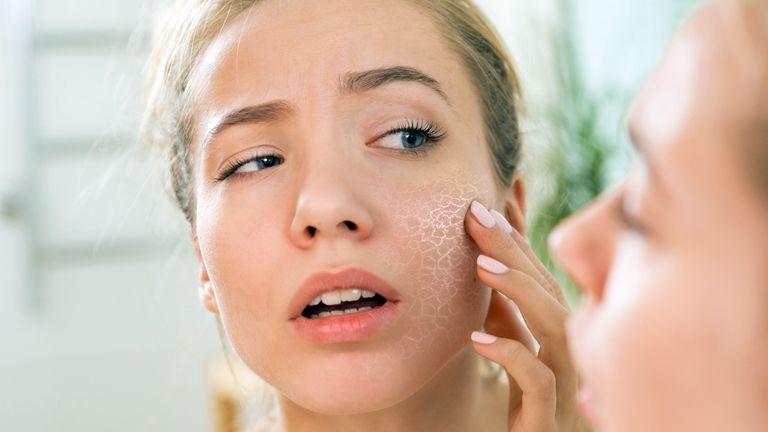 száraz vörös foltok az arc bőrén otthoni pikkelysömör kezelése otthon
