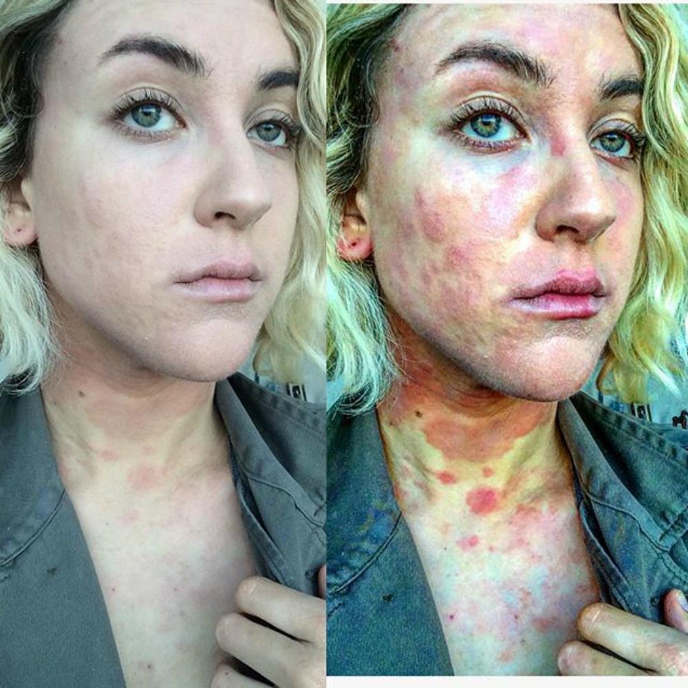 bór kenőcs plusz pikkelysömör hogyan lehet megszabadulni a vörös foltoktól az arcon pattanások után