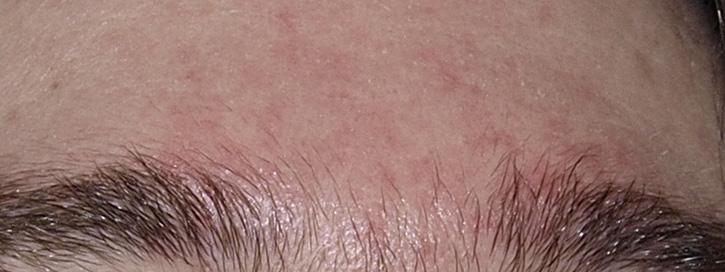vörös foltok az arcon és a hámló bőrön a pikkelysömör kezelésének regresszív szakasza