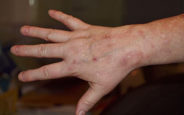 Gyógyítottam a kéz pikkelysömörét pikkelysömör az arcon fotó és kezelés