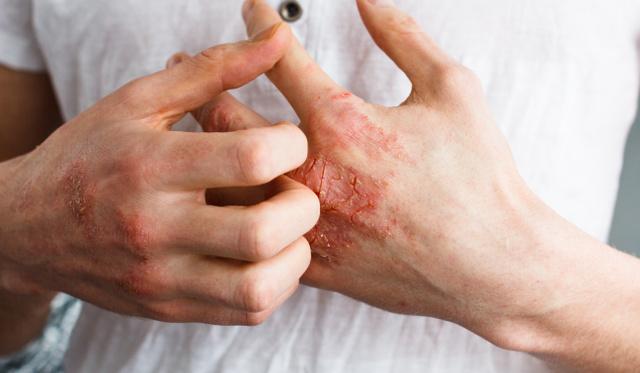 kezek s könyök pikkelysömör kezelése a felső ajak felett a vörös folt hámlik