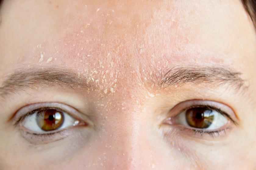 vörös pikkelyes foltok az arcon viszketés kezelés zúzódások után vörös foltok viszketnek