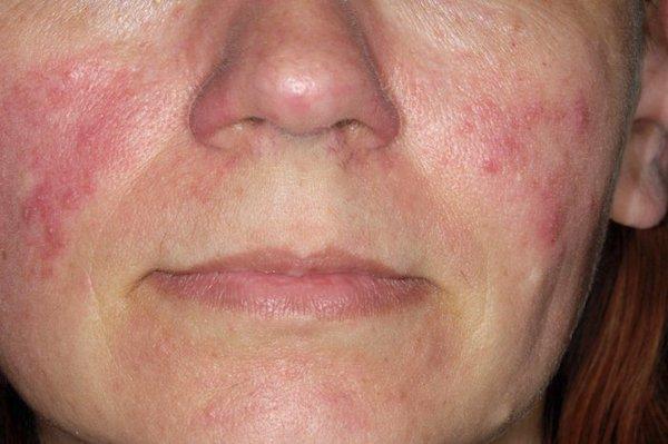 vörös foltok kezelése az arcon férfiaknál