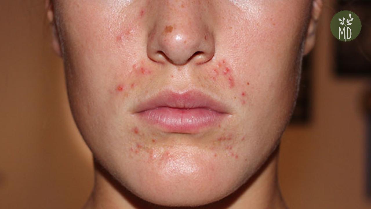 hogyan kell kezelni a gyomor vörös foltjait vörös foltok a hátán és az arcán mi az