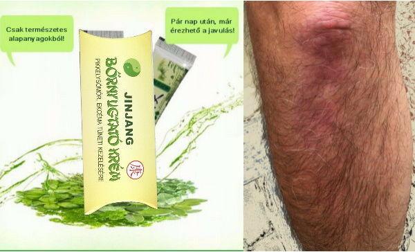 gyógynövényes kezelések pikkelysömörhöz Megvakartam a lábam vörös foltok jelentek meg