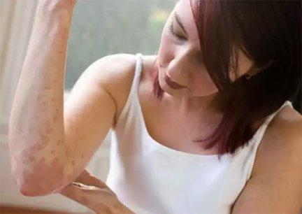 gyógyító kezeli a pikkelysömör nagy piros folt a lábfotón