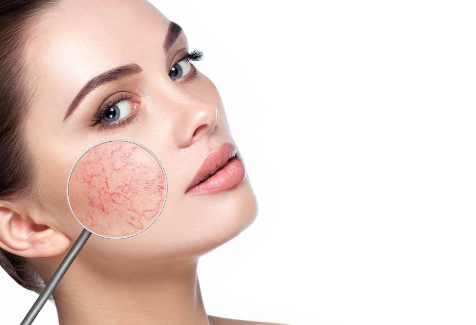 hogyan kezeli az arc vörös foltjait