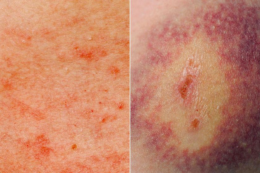fotó és a bőrön lévő vörös foltok leírása