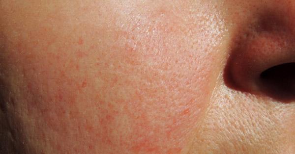szimmetrikus vörös foltok a kezeken zsálya pikkelysömör kezelése