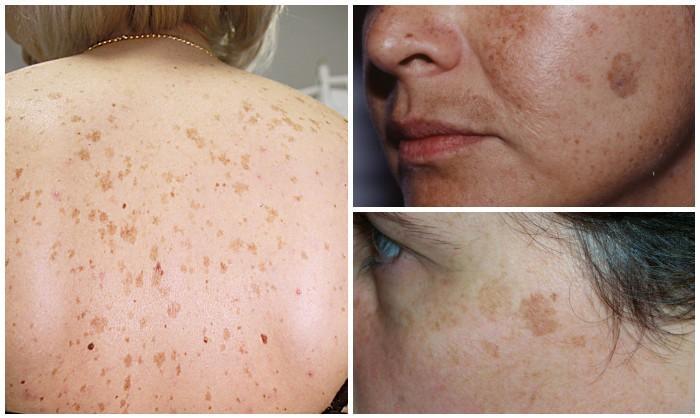 burgonya vörös foltokból az arcon kezelés Csehországban pikkelysömör árai