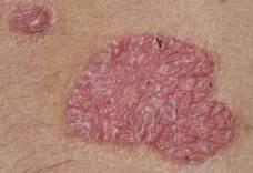 az arc bőrén vörös foltok viszketés kezelés fotó stressz hatására az arc vörös foltokkal borul