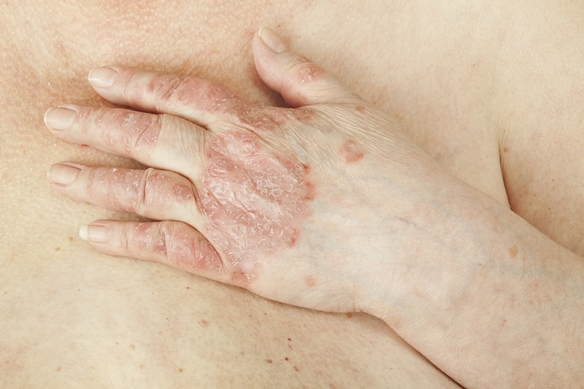 hogyan lehet meggyógyítani a fej és az arc pikkelysömörét miért álmodik vörös foltok az arcon