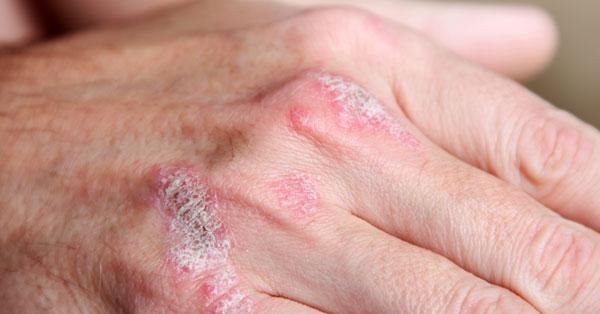 pikkelysömör kezelése a templomban vörös folt a szegycsont bőrén