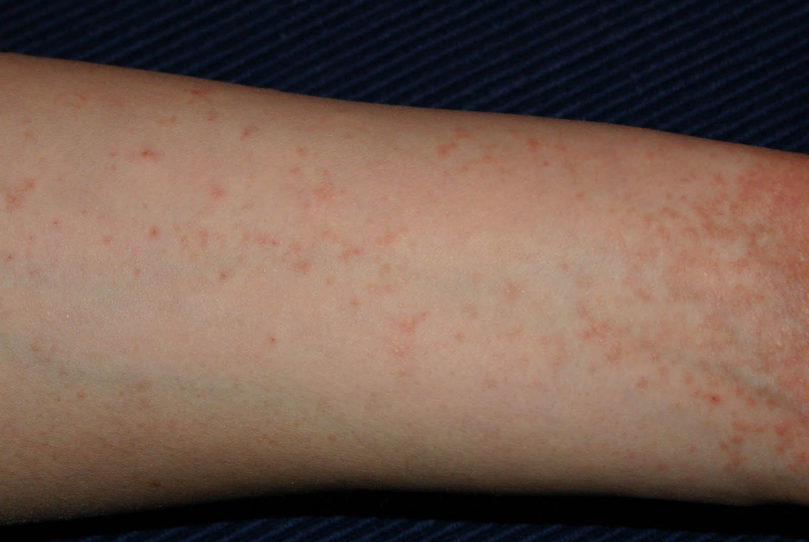 hogyan kell kezelni a pikkelysmr lbakon s karokon vörös és barna foltok a lábakon